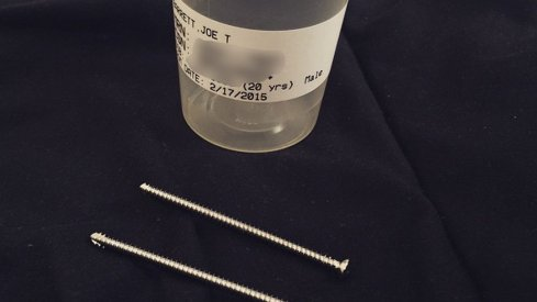 The two screws that were removed from J.T. Barrett's ankle.