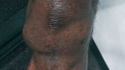 LeCharles Bentley's knee.