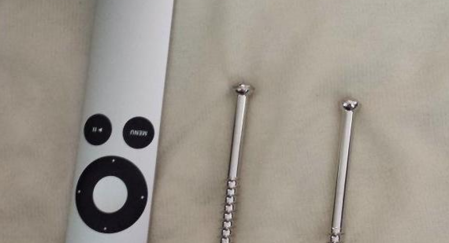 Kyle Berger's Leg-Screws